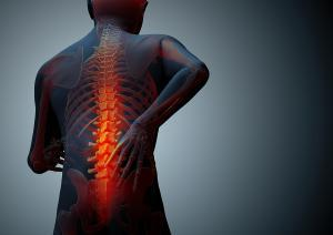 Back and Neck Injuries in Motor Vehicle Accidents